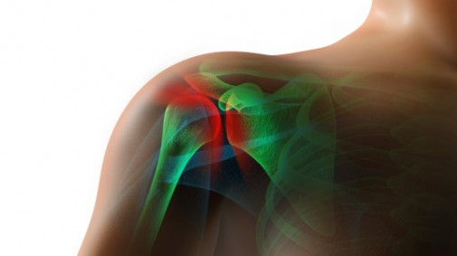 The 411 on rotator cuff surgery