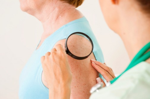 More moles could mean higher breast cancer risk