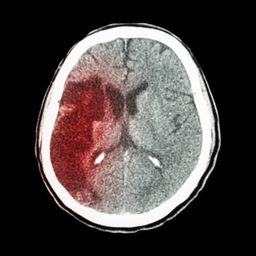 Stroke myths debunked