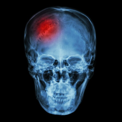 Are highly educated people at increased risk for stroke?
