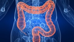 Colon cancer on the rise for younger patients